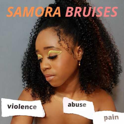 Samora - Bruises